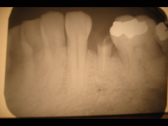 Immediate_dental_implant_x-ray.jpg