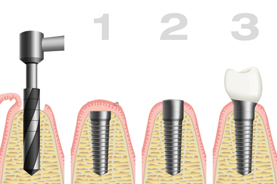 illustration of the stages of a dental implant