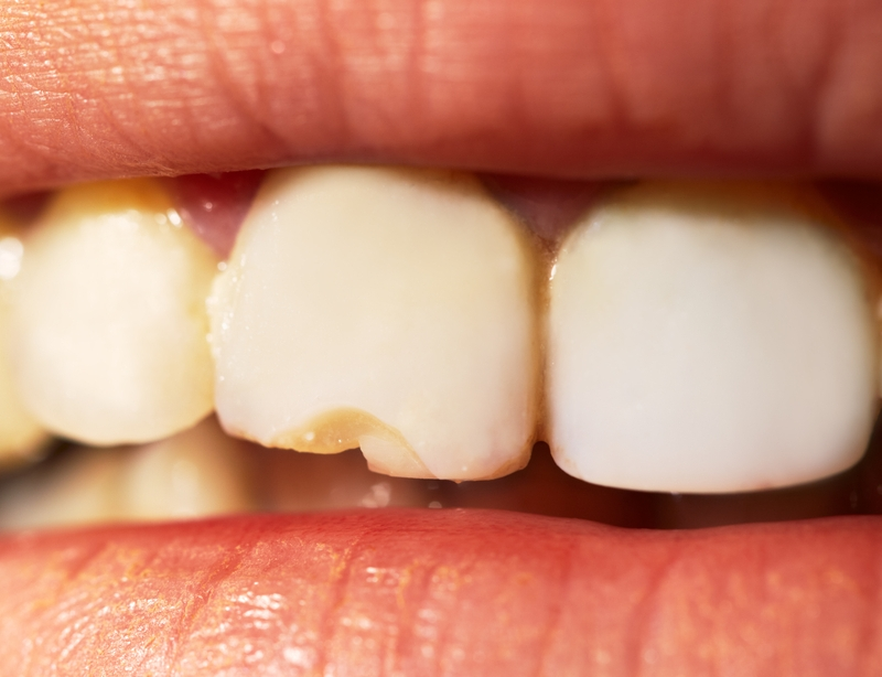 Cheap dentistry can have negative results.
