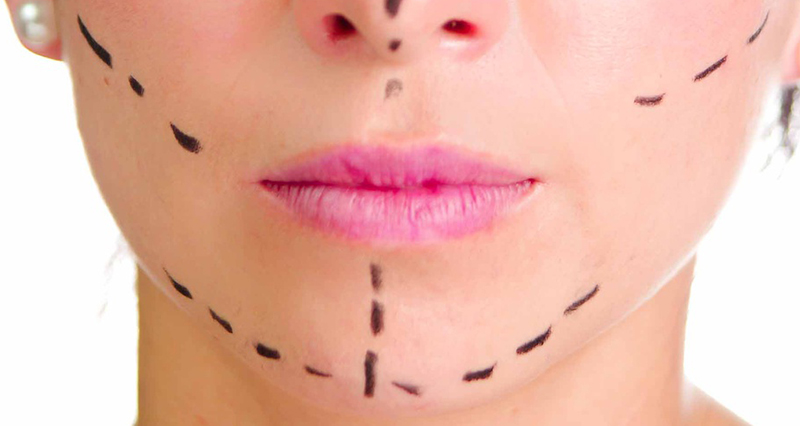 Closeup headshot caucasian woman with dotted lines drawn around face looking into camera, preparing cosmetic surgery