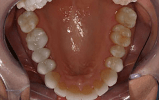 Should You Remove Metal Restorations or Leave Them in