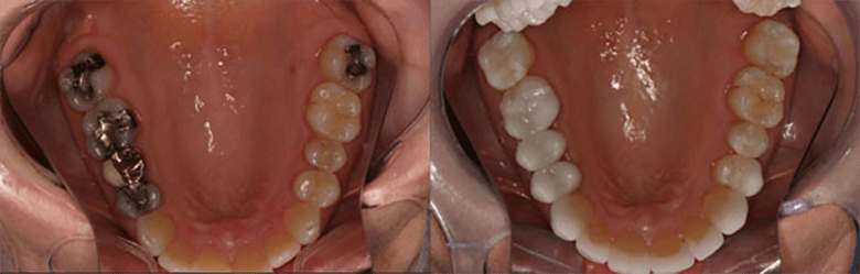 A before and after of a patient who got their amalgam fillings replaced with tooth colored fillings