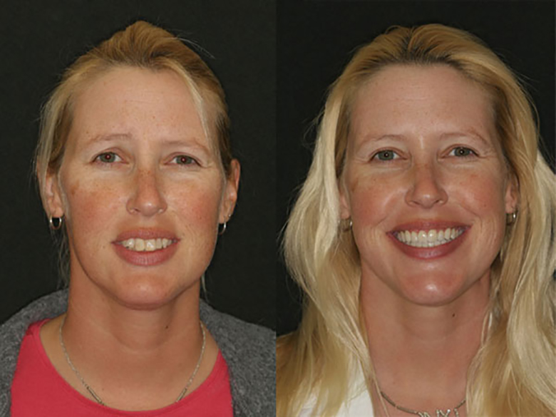 A before and after of a woman who recieved dentures from Beyond Exceptional Dentisty in Hilton Head