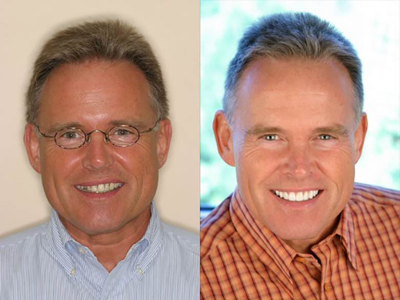 A before and after of a patient who recieved new implant Dentures in Hilton Head