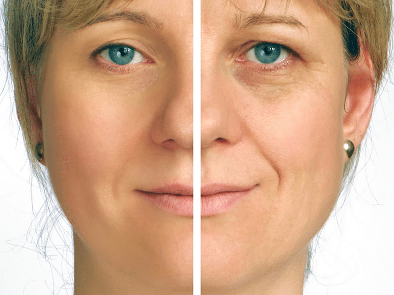 Why They Don't Want You to Know the Scientific Name for a Facelift