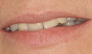 Crooked smile for a patient looking to improve her teeth