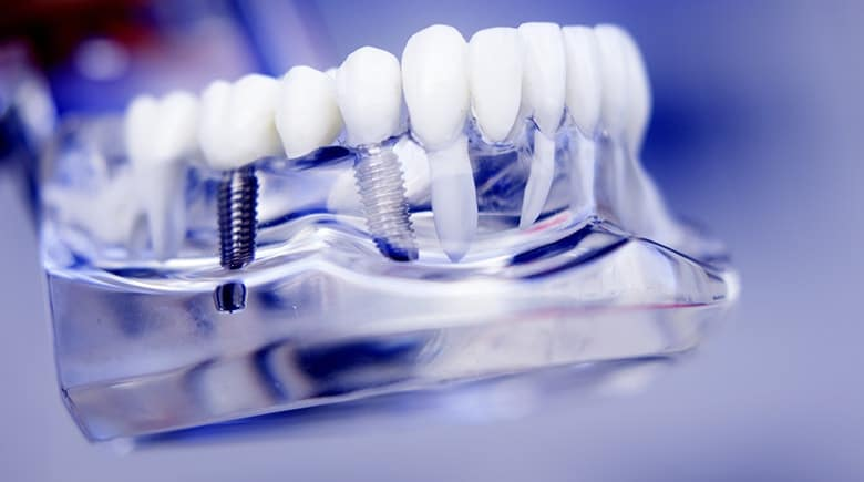 Why Insurance Won't Cover Dental Implants | Hilton Head