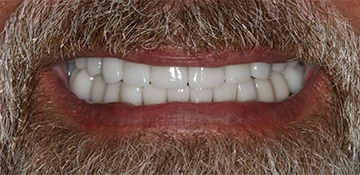 New smile of a patient of Beyond Exceptional Dentistry after treatment