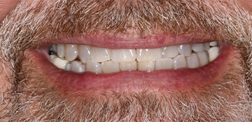 Closeup of a man's smile showing show teeth before treatment with Beyond Exceptional Dentistry