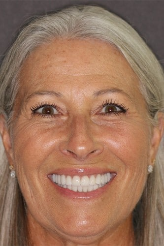 Full face view of a female after cosmetic dentistry