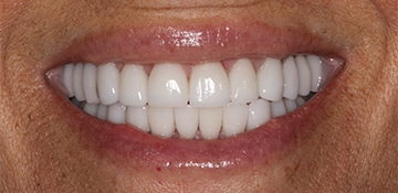 Closeup view of a female patient after cosmetic dental work