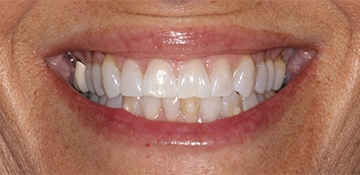 Closeup of a female dental patient before treatment with Beyond Exceptional Dentistry