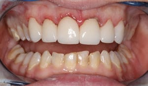 Closeup of a female's teeth after completing dental treatment at Beyond Exceptional Densitry in Hilton Head