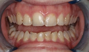 Closeup teeth view of a female patient before cosmetic dental work