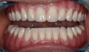 A closeup of a mouth after replacing teeth with implant supported dentures
