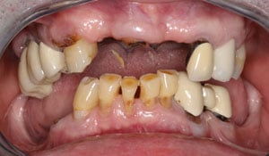 A closeup of a dental patients teeth showing missing teeth and decay