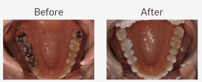 Why Not Keep Metal Fillings?