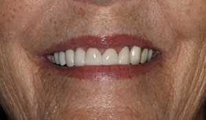 After cosmetic dental work completed by Beyond Exceptional Dentistry