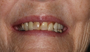 Closeup view of a female patients teeth before cosmetic dental work at Beyond Exceptional Dentistry