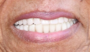female's After cosmetic dental work completed by Beyond Exceptional Dentistry closeup smile