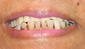 female's before cosmetic dental work completed by Beyond Exceptional Dentistry closeup
