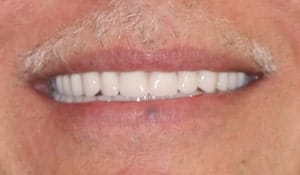 man's After cosmetic dental work completed by Beyond Exceptional Dentistry closeup