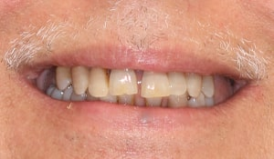 before cosmetic dental work completed by Beyond Exceptional Dentistry closeup