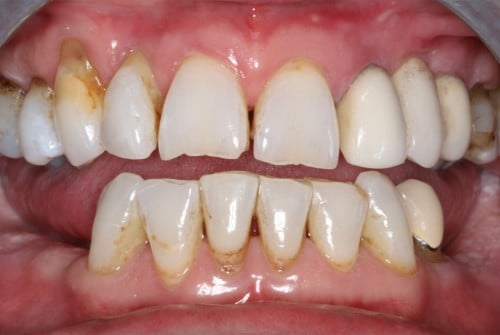 before cosmetic dental work completed by Beyond Exceptional Dentistry
