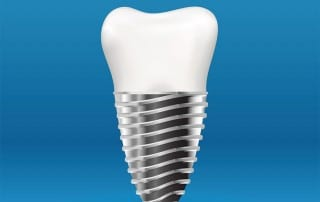 A strong dental implant