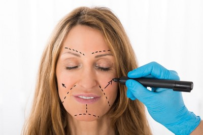 Surgeon Drawing Correction Lines On Woman Face - In Hilton Head, SC Dr. Rod Strickland offers Non-Surgical Dentistry for your facelift, no scars