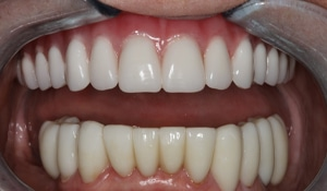 After cosmetic dental work completed by Beyond Exceptional Dentistry closeup