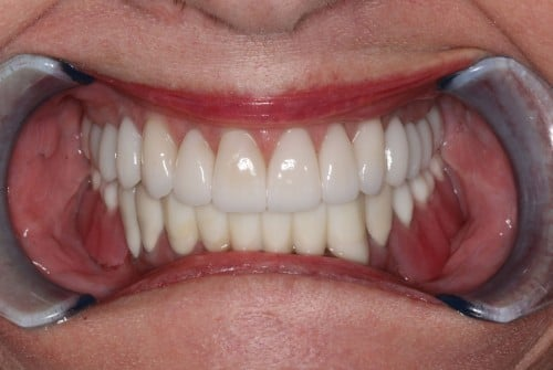 After a cosmetic dental procedure by Beyond Exceptional Dentistry closeup
