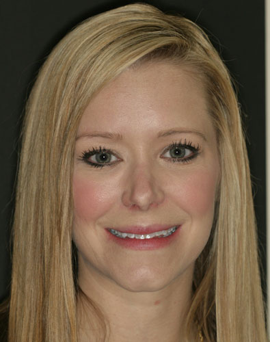 before a cosmetic dental procedure by Beyond Exceptional Dentistry full face view
