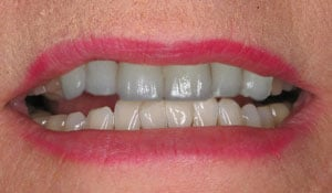 before a cosmetic dental procedure by Beyond Exceptional Dentistry closeup
