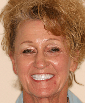 After a cosmetic dental procedure by Beyond Exceptional Dentistry