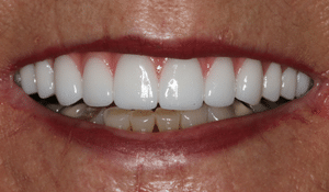 After smile of a cosmetic dental patient of Beyond Exceptional Dentistry