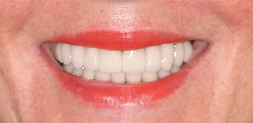 A closeup of a female dental patients smile after completing dental work