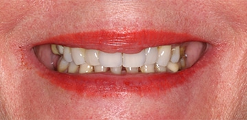 A before treatment smile of a dental patient of Beyond Exceptional Dentistry