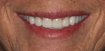 Closeup view of a female dental patient of Beyond Exceptional Dentistry after treatment