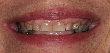 Closeup view of a female dental patient of Beyond Exceptional Dentistry before treatment
