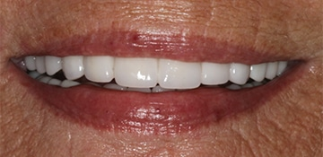 Closeup of a female's new smile thanks to Beyond Exceptional Dentistry