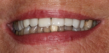 Closeup of a female's smile before cosmetic dental work at Beyond Exceptional Dentistry