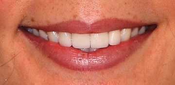 Closeup smile of dental patient of Beyond Exceptional Dentistry
