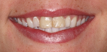Female patients closeup smile showing discoloration of her teeth