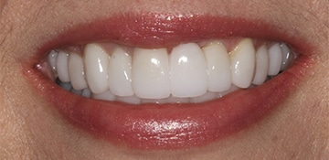 Closeup of a female dental patient after treatment with Beyond Exceptional Dentistry