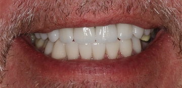 Closeup of a male smile after completing dental treatment with Beyond Exceptional Dentistry