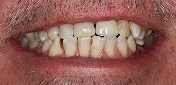 Closeup view of a man's smile before completing dental work with Beyond Exceptional Dentistry