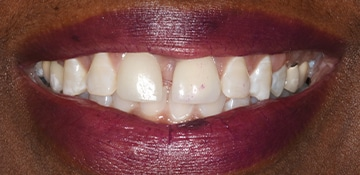 Closeup of a smile before cosmetic dental work at Beyond Exceptional Dentistry