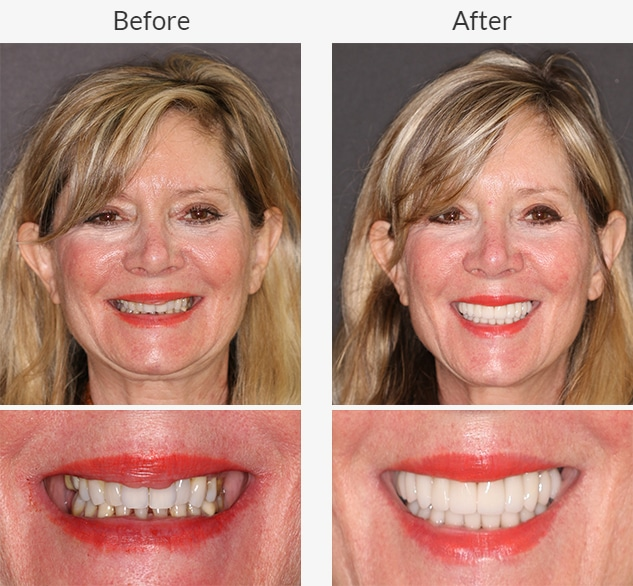 Female dental patient shows off the before and after treatment smiles from Beyond Exceptional Dentistry