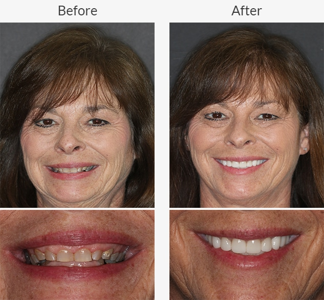 Dental patient of Beyond Exceptional Dentistry shows off before and after treatment smiles